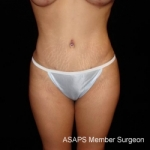 Buttocks Augmentation Via Fat Grafting with Liposuction of Abdomen, Waist, Flanks, and Dorsal Roll - After