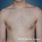 Bilateral gynecomastia- Before