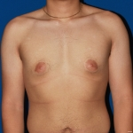 Gynecomastia male breast reduction- Before