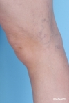Spider Vein Treatment- Before