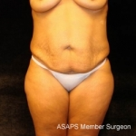 Full Abdominoplasty with Liposuction Abdomen, Waist, Flanks, and Dorsal Roll- Before