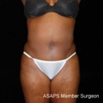 Mini Abdominoplasty with Liposuction of Abdomen, Waist, Flanks, and Dorsal Roll - After