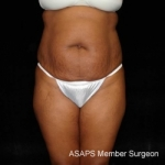 Full Abdominoplasty with Liposuction of Abdomen, Waist, Flanks, Dorsal Roll with Fat Grafting to Buttocks- Before