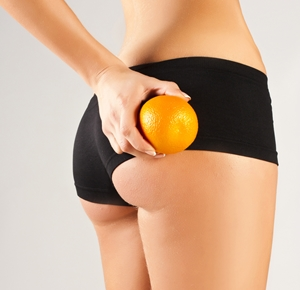 Cellulaze can decrease the appearance of cellulite on the thighs.